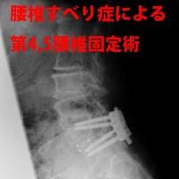 腰椎すべり症による第4、5腰椎固定術2