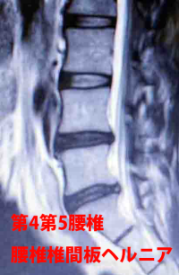 第4第5腰椎 ようつい椎間板ヘルニア