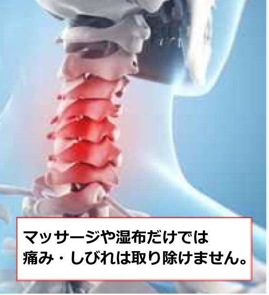筋肉の揉みほぐしや湿布だけでは痛みしびれは取り除けません