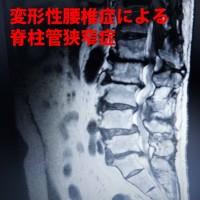 変形性腰椎症による脊柱管狭窄症
