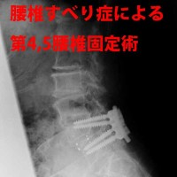 腰椎すべり症による第4、5ようつい固定術2